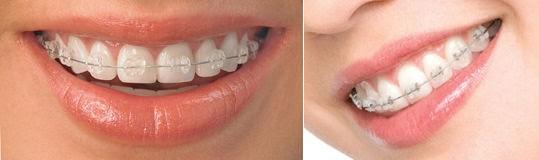 brackets-esteticos-gandia-adultos-ortodoncia.jpg
