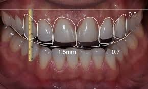 medidas-dientes-perfectos