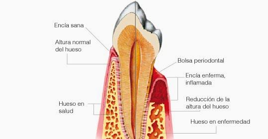 periodoncia-gandia.jpg