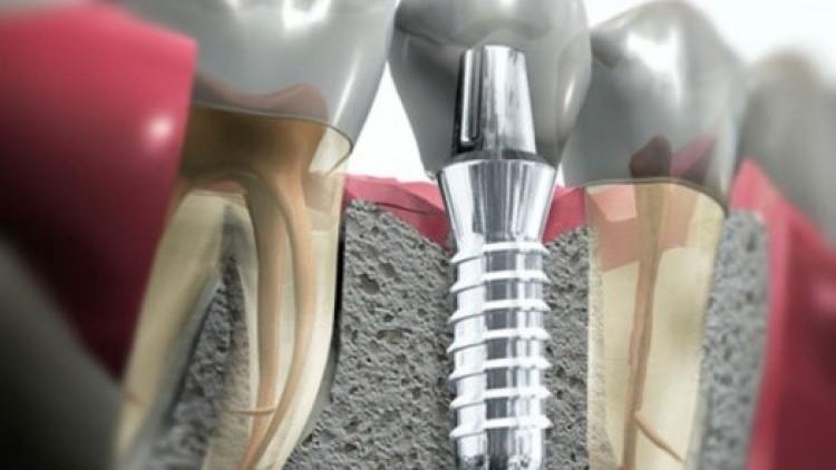 Voy a llevar un implante dental… ¿qué debo saber?