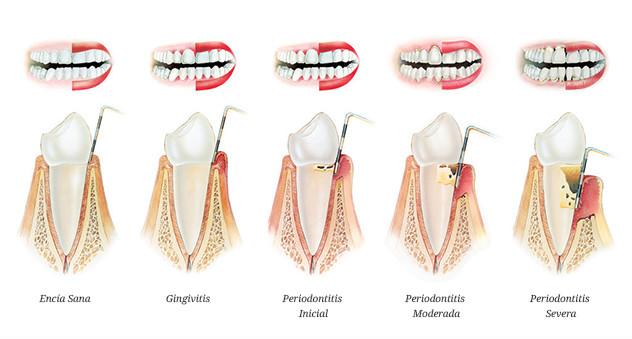 niveles-periodontitis-gandia