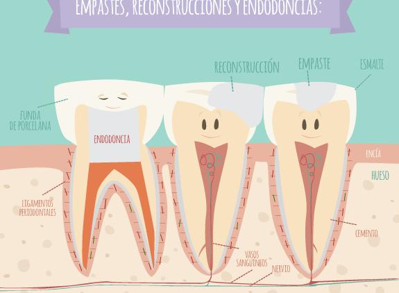 Endodoncia o tratamiento de conductos: ¡ una forma de conservar tu sonrisa!
