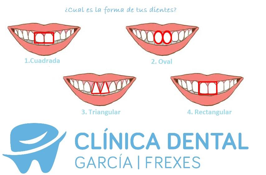 ¿ Qué dicen tus dientes sobre tu personalidad?