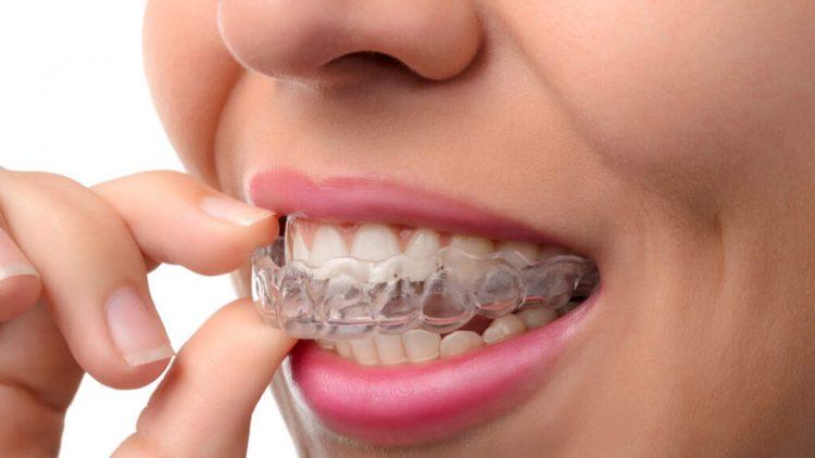 Invisalign: La ortodoncia estética que más se lleva