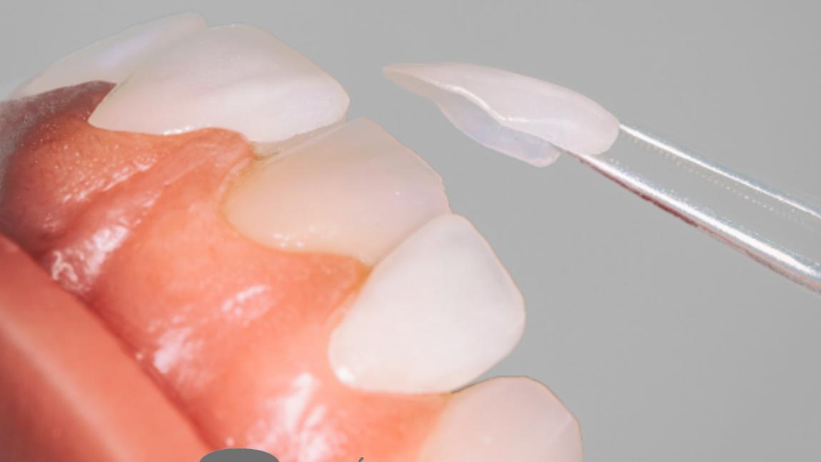 Carillas y lentes dentales