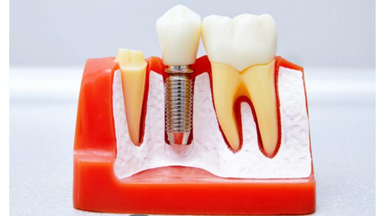 ¿Tienes que ponerte un implante dental? Desmontamos 10 mitos sobre los implantes.